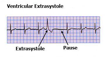 Ventricular-extrasystole-ECG.jpg