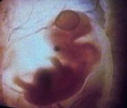 Ian Andrew Troi II embryo