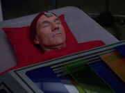 Picard during surgery.jpg