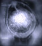 Electron microscope image.