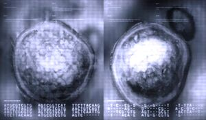 Two electron microscope images side by side.