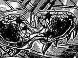 Метроид (вид)