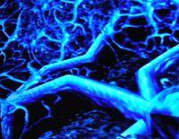 Phazon Azul.jpg