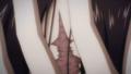 Suzy Scar Closeup