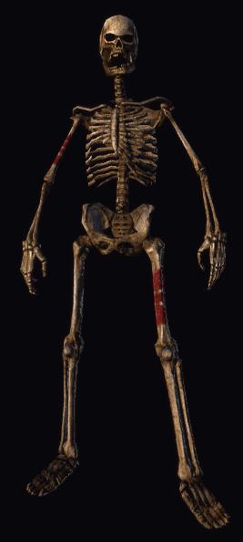 Decrepit Skeleton 2.png