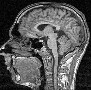 FMRI-scan sectie 85.JPG