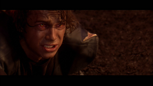 Vader painful