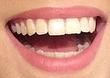 Jenna's Mouth Screen