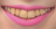 Evanna's Mouth Screen