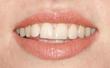 Jess Glynne's Mouth Screen
