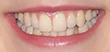 JoJo Siwa's Teeth