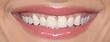 Bebe Rexha's mouth screen