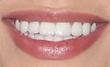 Bethany Mota's Lips