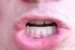 The Man With No Tongue