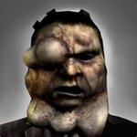 Infected Hoxton