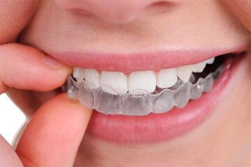 Dental Retainer.jpg