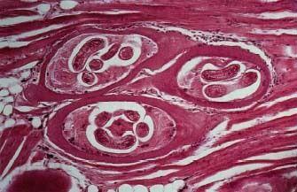 Trichinosis.jpg