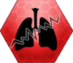 Фиброз легких.png