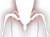 Nano-Wirus