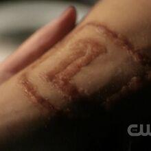Clark Luthor Scar.jpg