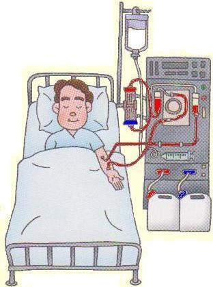 Dialysis Inducement