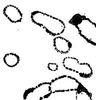 Археолинтус полярис срез