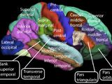 Association cortex