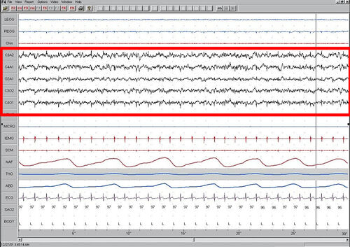 Stage1 Sleep. EEG highlighted by red box.