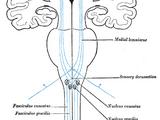 Ventral posterolateral nucleus