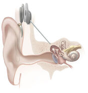 Cochlear implant-1-