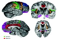 Schematic of cortical areas involved with pain processing and fMRI cropped