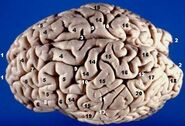 Human brain superior-lateral view description