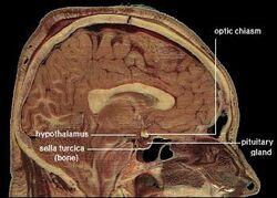 LocationOfHypothalamus.jpg