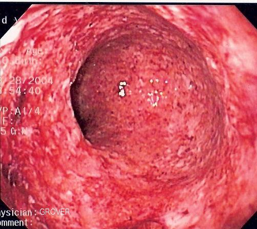 CD colitis 2.jpg