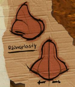 Rhinoplasty.PNG
