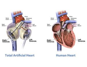 600px-Graphic of the SynCardia temporary Total Artificial Heart beside a human heart-1-.jpg