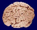 Brain 090407.jpg
