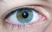 Sectoral heterochromia