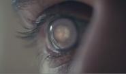 Grain eye