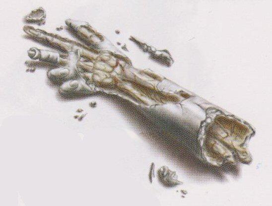 Daniel's Arm