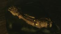 Prosthetic Arm's Legacy
