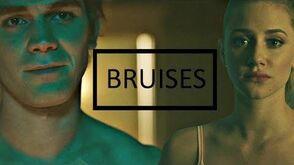 Betty & Archie Bruises