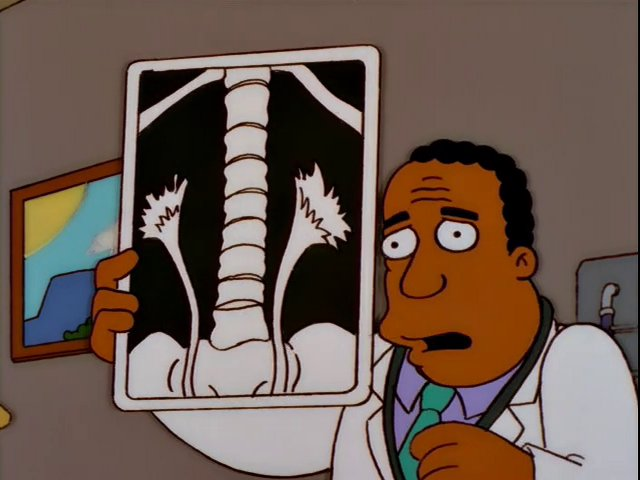 "Homer Simpson in: ""Kidney Trouble"""