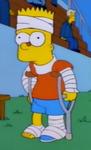 Bart fake injured