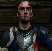 Tw3 bastien vildenvert wounded