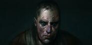 Raphael-lubke-bloodburn-victim-2