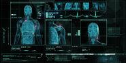Chris-francis-smi-hq-infirmary1024x512-comps-v1-0
