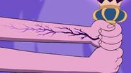 S3E2 Black veins appear on Moon's left arm