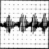 Vrusk EKG Reading