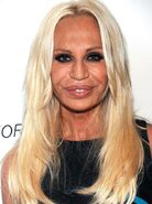 Donatella-Versace-after-plastic-surgery-and-Botox-inections